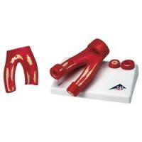 Modèle d'artériosclérose