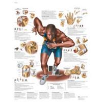Planche anatomique - Blessures sportives